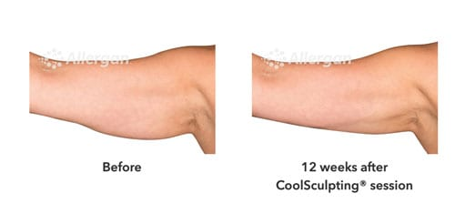 Man | Body Treatment | Coolsculpting – Cadella Aesthetics